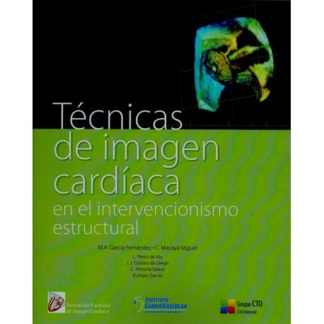 Técnicas de imagen cardiaca en el intervencionismo estructural - Envío Gratuito