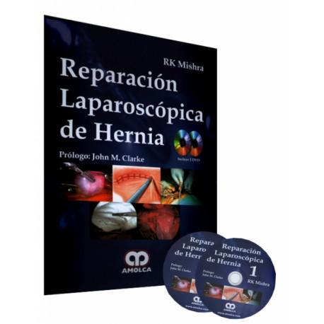 Reparación Laparoscópica de Hernia - Envío Gratuito