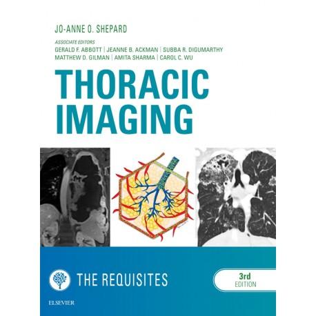 Thoracic Imaging The Requisites E-Book (ebook) - Envío Gratuito