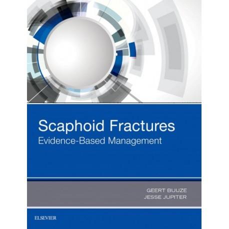 Scaphoid Fractures (ebook) - Envío Gratuito