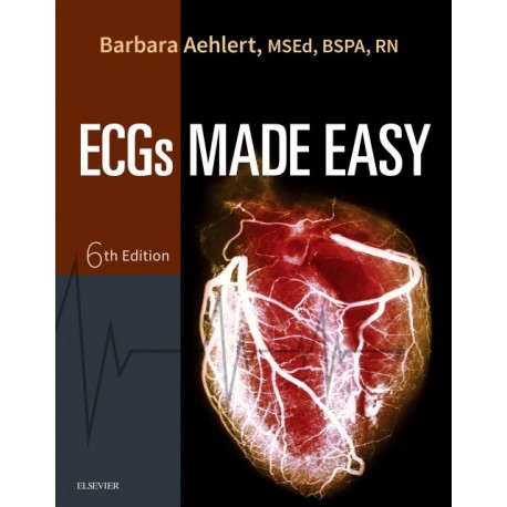 Pocket Guide for ECGs Made Easy - E-Book (ebook) - Envío Gratuito