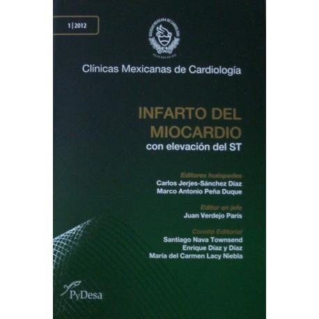 CMC: Infarto del Miocardio - Envío Gratuito