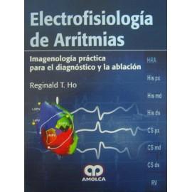 Electrofisiología de Arritmias
