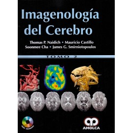 Imagenología del Cerebro - Envío Gratuito