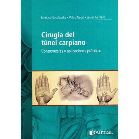 Cirugia del Tunel Carpiano, Controversias y aplicaciones practicas - Envío Gratuito