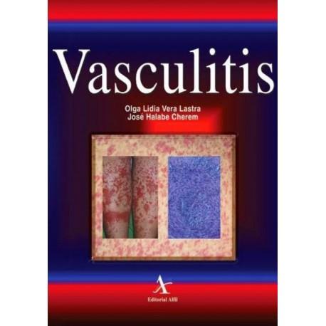 Vasculitis - Envío Gratuito
